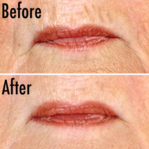 Dermelect Upper Lip Anti-Aging Treatment - View 2