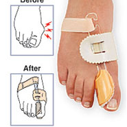 Foot Pain - Bunion Splint